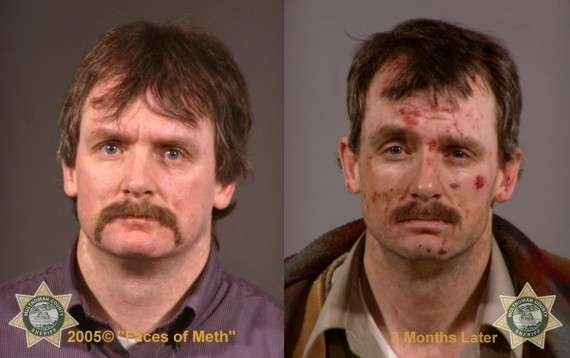 Faces of Meth Male. Photograph published with thanks to the Multnomah County Sheriff's Office. Copyright Faces of Meth ® 2005