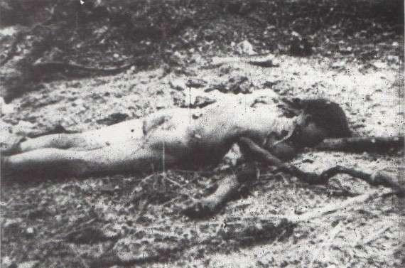 Αμερικάνος στρατιώτης με κομμένο χέρι – φωτογραφία λογοκριμένη για το μεγαλύτερο μέρος του πολέμου.
