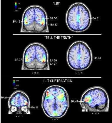 Απεικόνιση μέσω λειτουργικής μαγνητικής τομογραφίας του εγκεφάλου ενός ψευδόμενου και ενός ειλικρινούς ανθρώπου |